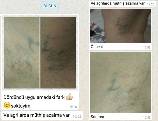 LR Acil Durum Spreyi Consantrate Varis