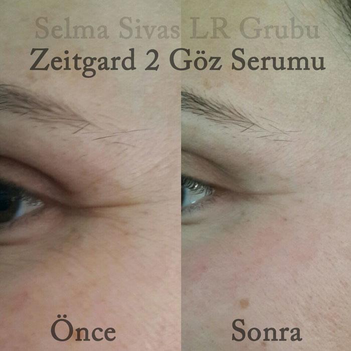 Zeitgard 2 Oncesi Sonrasi