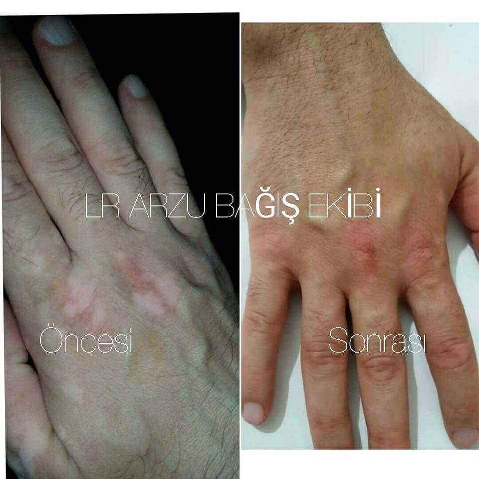 vitiligo LR urunleri dermaintense acil yardim spreyi